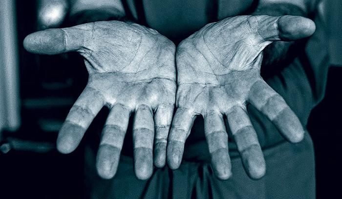 Рука-02